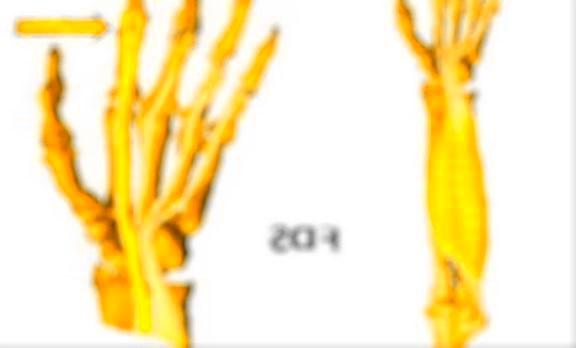 tendons.jpg